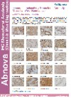 Immunohistochemistry Monoclonal Antibody (Class I In Vitro Diagnostics)